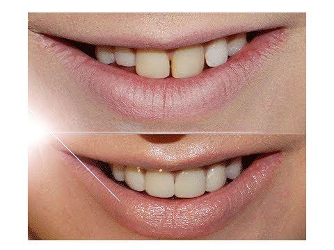 spleetje tanden afbeelding